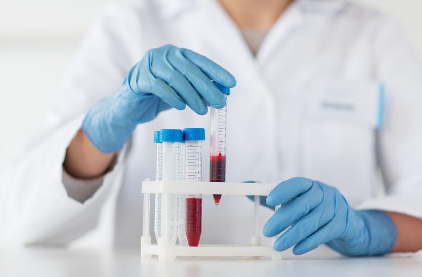 test intolérance au lactose prise de sang